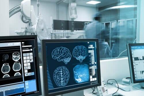 Exames cerebrais