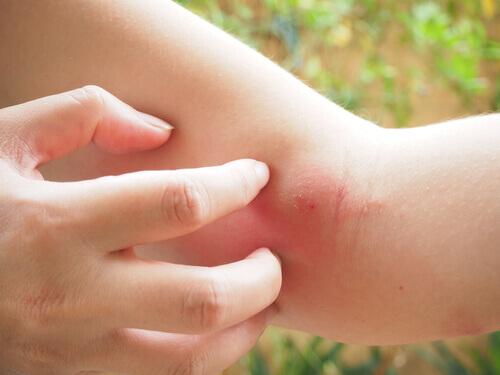 Consequências da picada de mamangaba